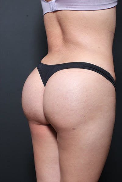 Brazilian Butt Lift Gallery - Patient 14089730 - Image 4