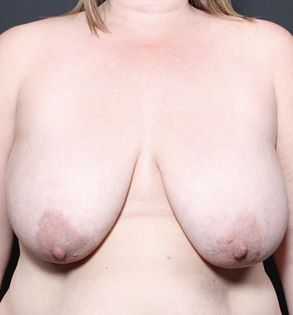 Breast Lift Mastopexy Gallery - Patient 14089725 - Image 3