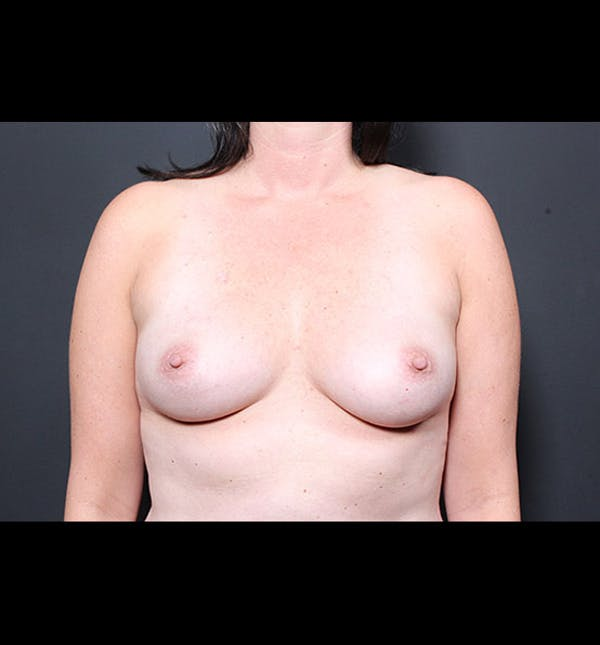 Breast Augmentation Gallery - Patient 14089731 - Image 3