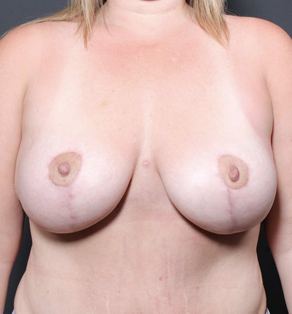 Breast Lift Mastopexy Gallery - Patient 14089725 - Image 4