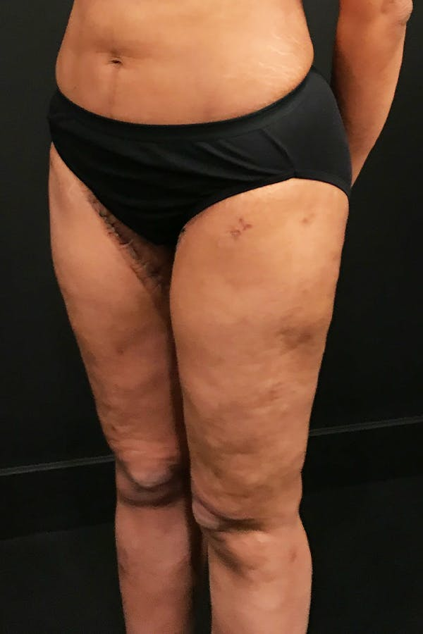 Thigh Lift Gallery - Patient 14089728 - Image 2