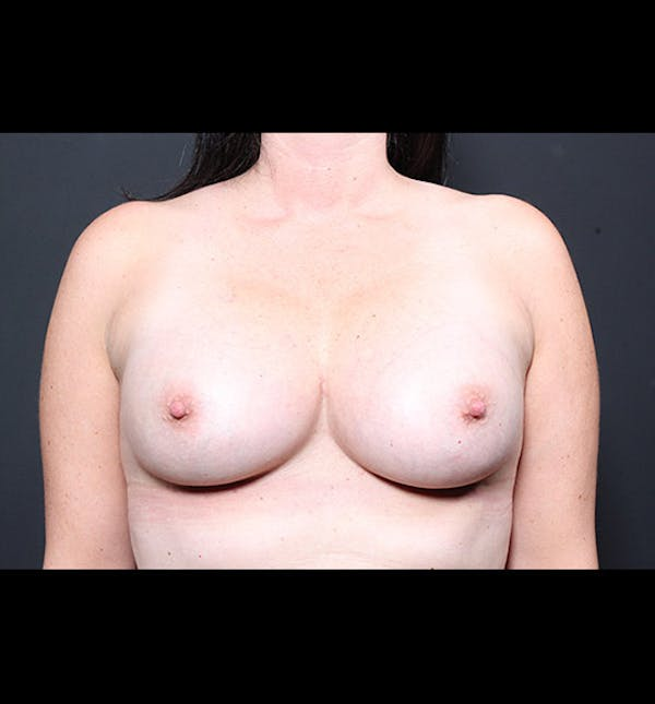 Breast Augmentation Gallery - Patient 14089731 - Image 4