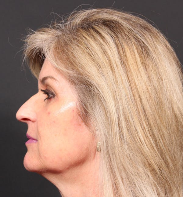 Injectables Gallery - Patient 14089736 - Image 5