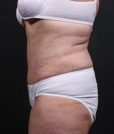 Liposuction Gallery - Patient 14089724 - Image 6