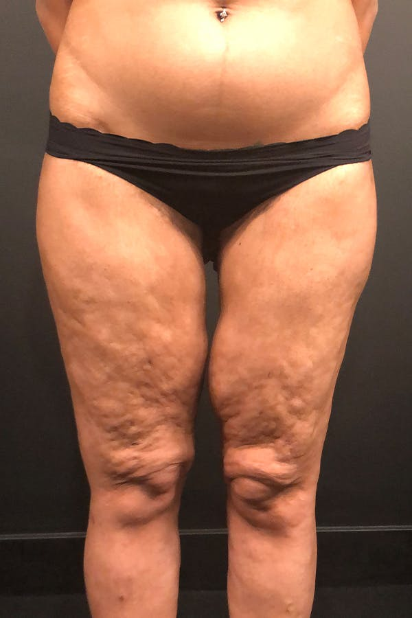 Thigh Lift Gallery - Patient 14089728 - Image 3