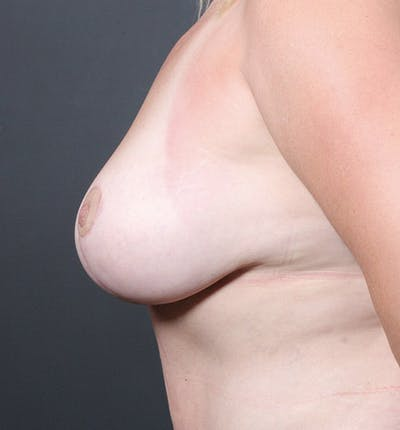 Breast Lift Mastopexy Gallery - Patient 14089725 - Image 6