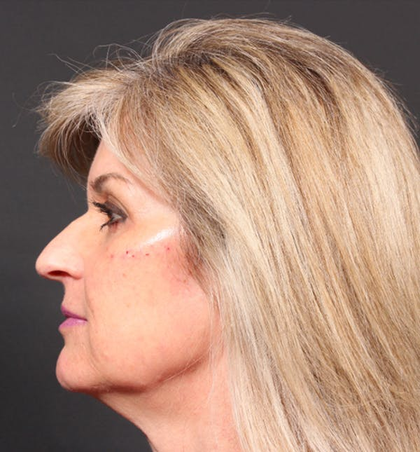 Injectables Gallery - Patient 14089736 - Image 6