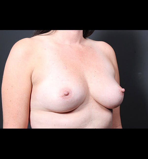 Breast Augmentation Gallery - Patient 14089731 - Image 7