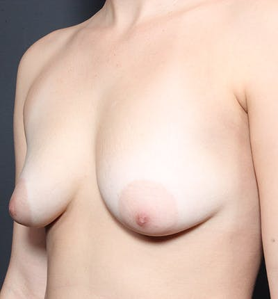 Breast Lift Mastopexy Gallery - Patient 14089738 - Image 1