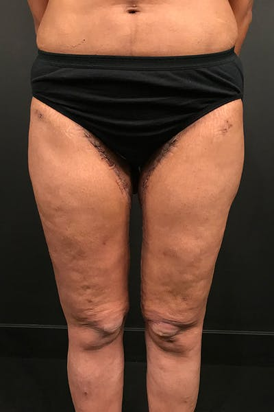 Thigh Lift Gallery - Patient 14089728 - Image 4