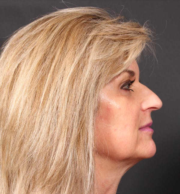 Injectables Gallery - Patient 14089736 - Image 7