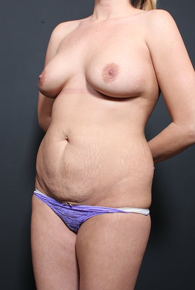 Mommy Makeover Gallery - Patient 14089735 - Image 1