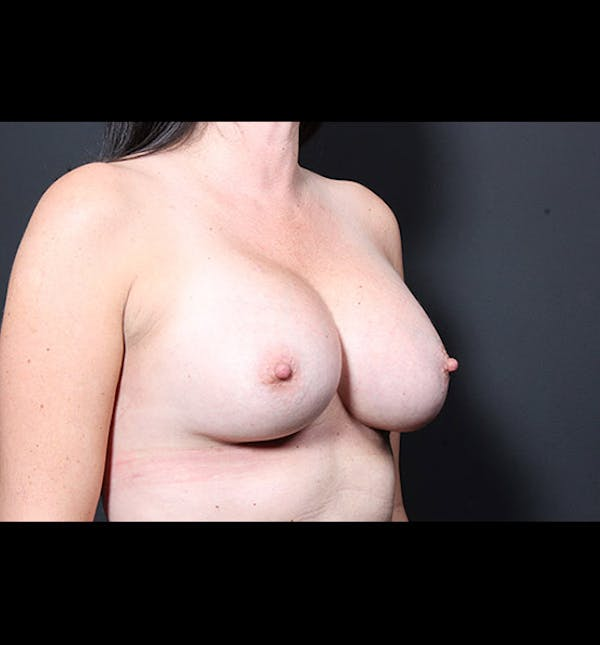 Breast Augmentation Gallery - Patient 14089731 - Image 8