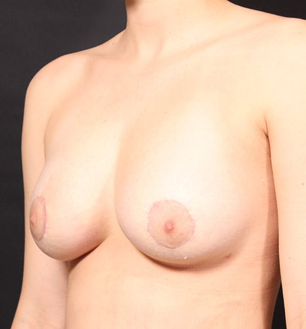 Breast Lift Mastopexy Gallery - Patient 14089738 - Image 2