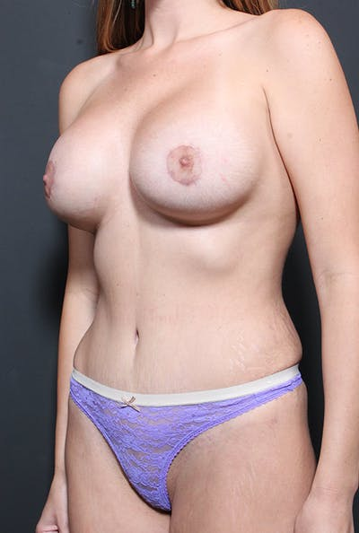 Mommy Makeover Gallery - Patient 14089735 - Image 2