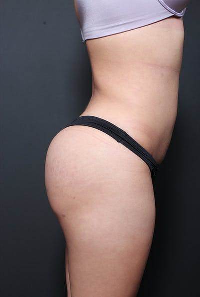 Brazilian Butt Lift Gallery - Patient 14089730 - Image 10