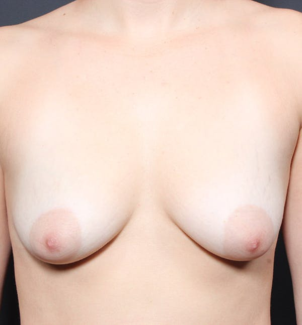 Breast Lift Mastopexy Gallery - Patient 14089738 - Image 3