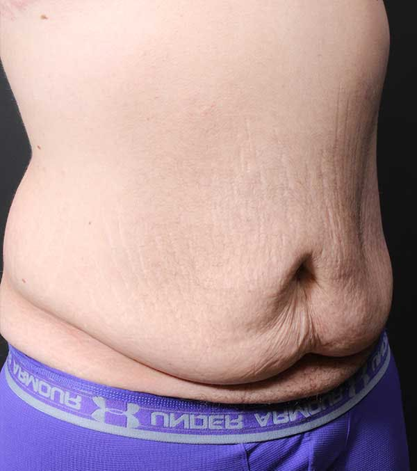 Male Tummy Tuck Gallery - Patient 14089732 - Image 7