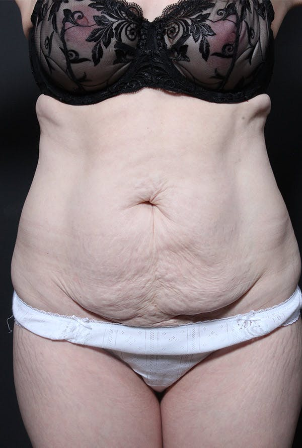 Liposuction Gallery - Patient 14089734 - Image 3