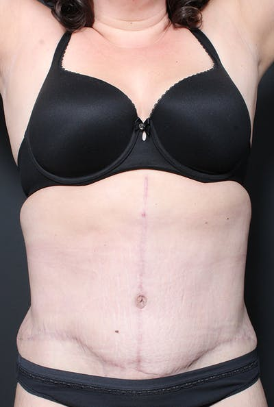 Plus Size Tummy Tuck® Gallery - Patient 14089739 - Image 2