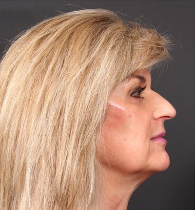 Injectables Gallery - Patient 14089736 - Image 8