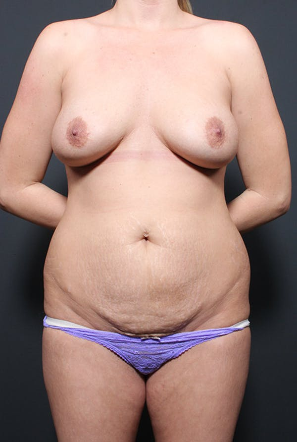 Mommy Makeover Gallery - Patient 14089735 - Image 3