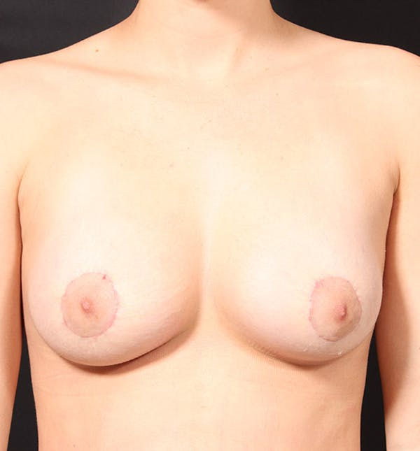 Breast Lift Mastopexy Gallery - Patient 14089738 - Image 4