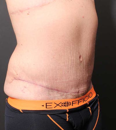 Male Tummy Tuck Gallery - Patient 14089732 - Image 8