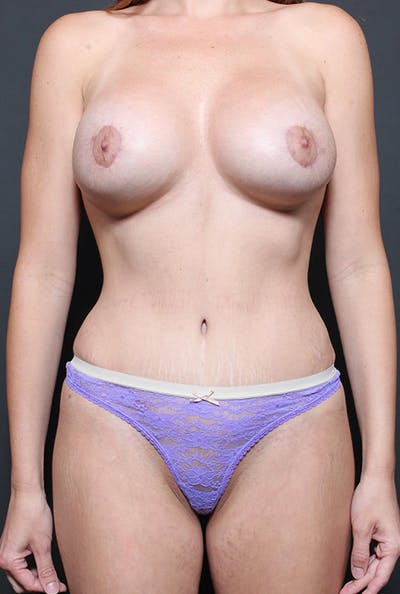 Mommy Makeover Gallery - Patient 14089735 - Image 4