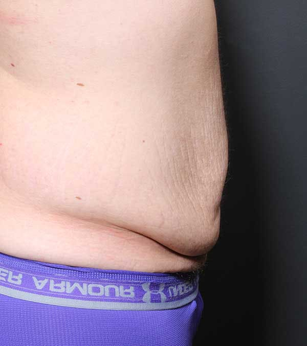 Male Tummy Tuck Gallery - Patient 14089732 - Image 9