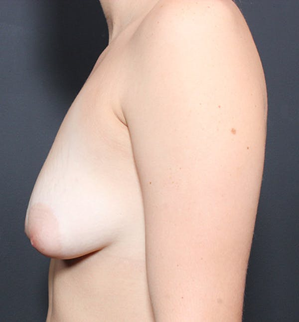 Breast Lift Mastopexy Gallery - Patient 14089738 - Image 5