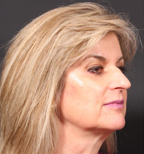 Injectables Gallery - Patient 14089736 - Image 9