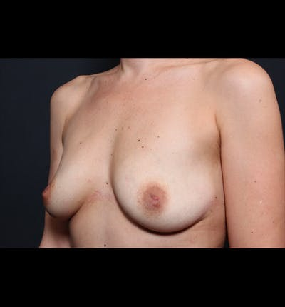 Breast Augmentation Gallery - Patient 14089740 - Image 1