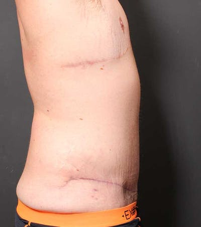 Male Tummy Tuck Gallery - Patient 14089732 - Image 10