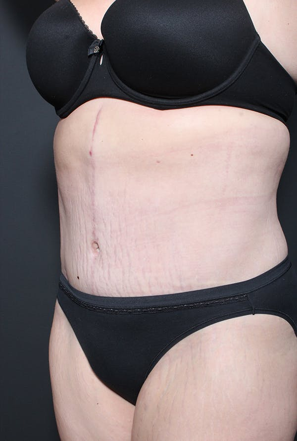 Plus Size Tummy Tuck® Gallery - Patient 14089739 - Image 4