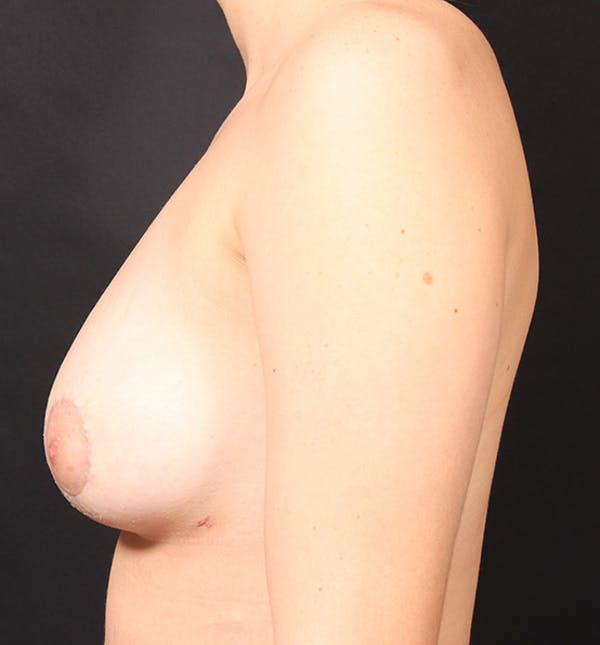 Breast Lift Mastopexy Gallery - Patient 14089738 - Image 6