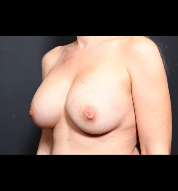 Breast Augmentation Gallery - Patient 14089740 - Image 2