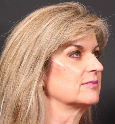 Injectables Gallery - Patient 14089736 - Image 10