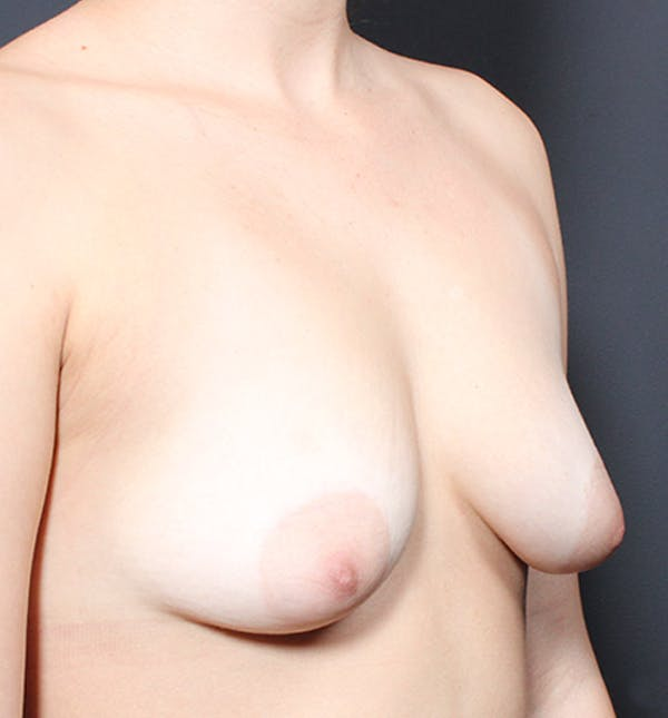 Breast Lift Mastopexy Gallery - Patient 14089738 - Image 7