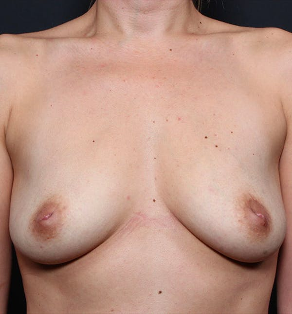 Breast Augmentation Gallery - Patient 14089740 - Image 3