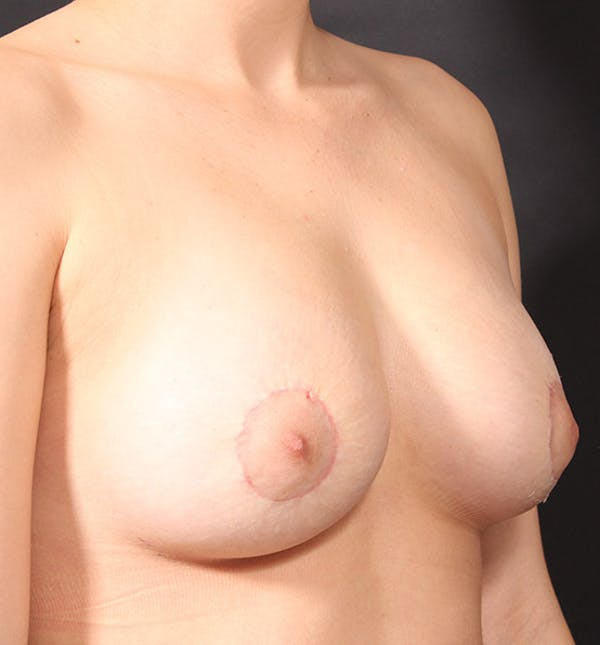 Breast Lift Mastopexy Gallery - Patient 14089738 - Image 8
