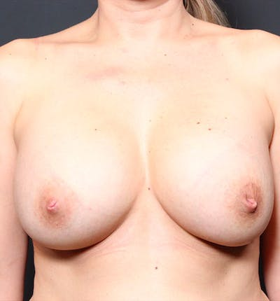 Breast Augmentation Gallery - Patient 14089740 - Image 4