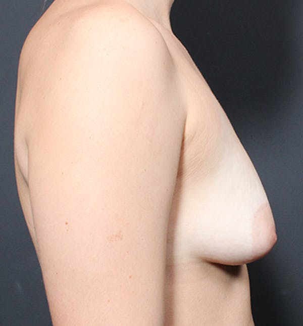 Breast Lift Mastopexy Gallery - Patient 14089738 - Image 9