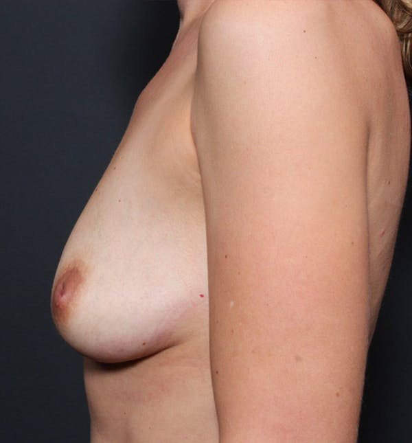 Breast Augmentation Gallery - Patient 14089740 - Image 5