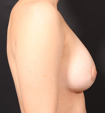 Breast Lift Mastopexy Gallery - Patient 14089738 - Image 10