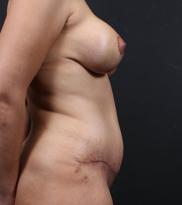 Mommy Makeover Gallery - Patient 14089741 - Image 2