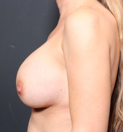 Breast Augmentation Gallery - Patient 14089740 - Image 6