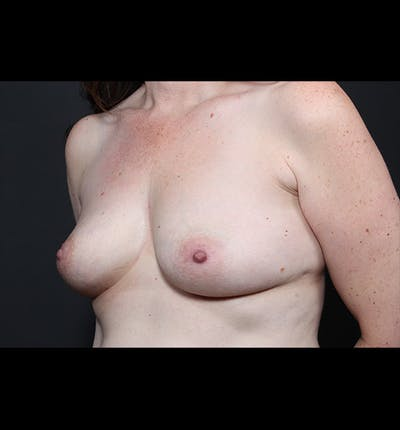 Breast Augmentation Gallery - Patient 14089744 - Image 1