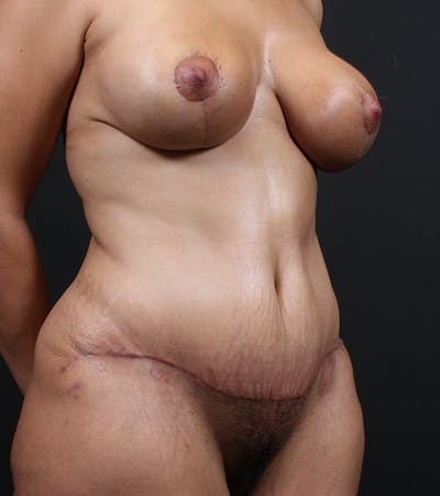 Mommy Makeover Gallery - Patient 14089741 - Image 4