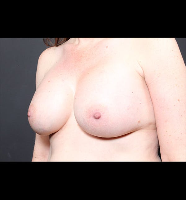Breast Augmentation Gallery - Patient 14089744 - Image 2